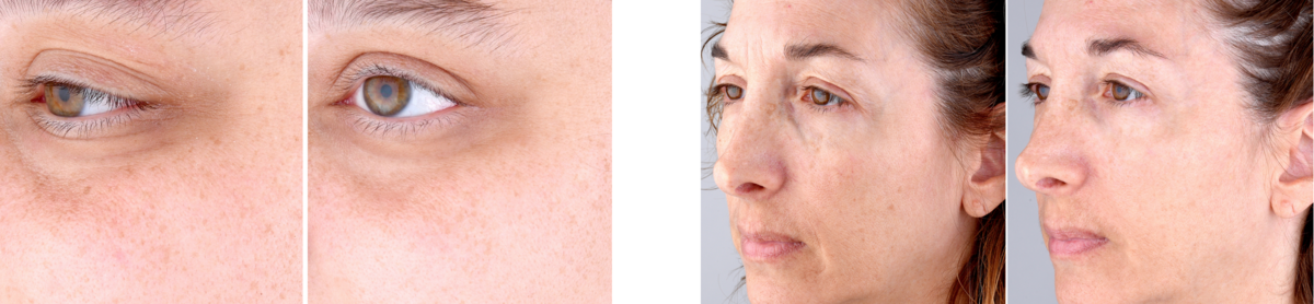 Perfectio Plus - Before and After