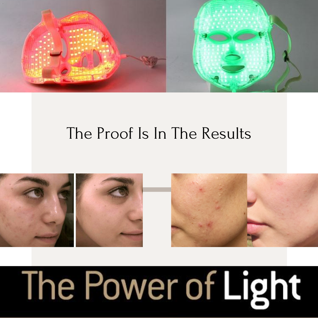 LED Light Therapy Benefits
