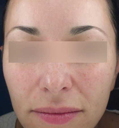 Before And After Results Vivierpharma