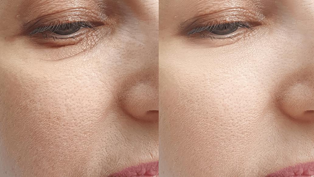 Spotlight Eyecream von Soroci im Test
