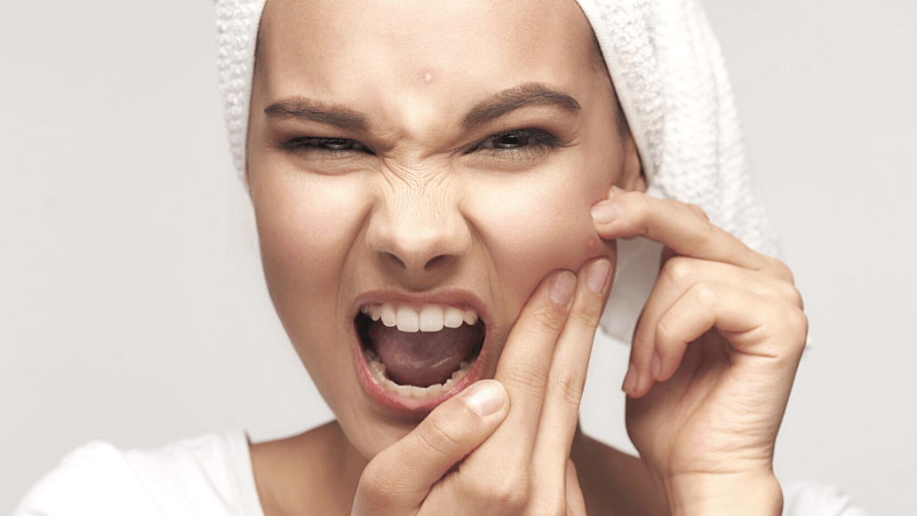 Koreanische Kosmetik - Pflege bei Spätakne bei Shishi Chérie