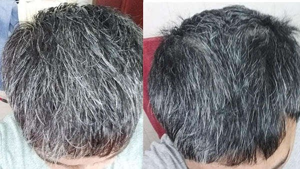 Before After Pic 2