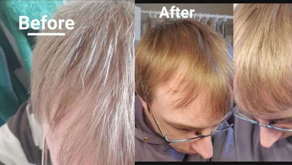 Before After Pic 4